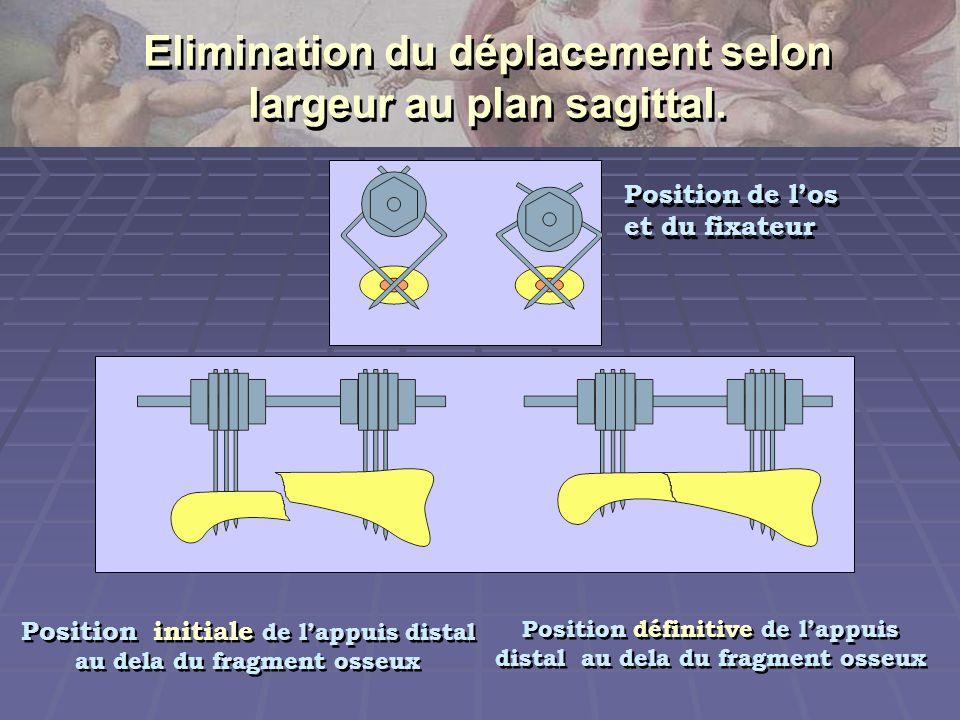 Elimination du déplacement selon largeur au plan sagittal.