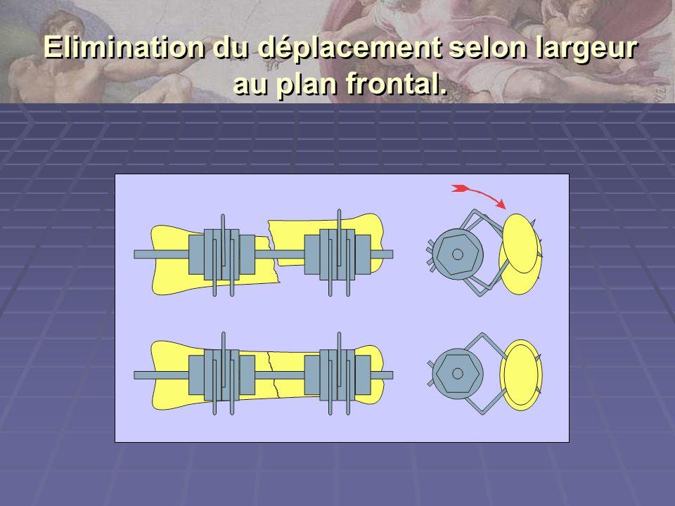 Elimination du déplacement selon largeur au plan frontal.