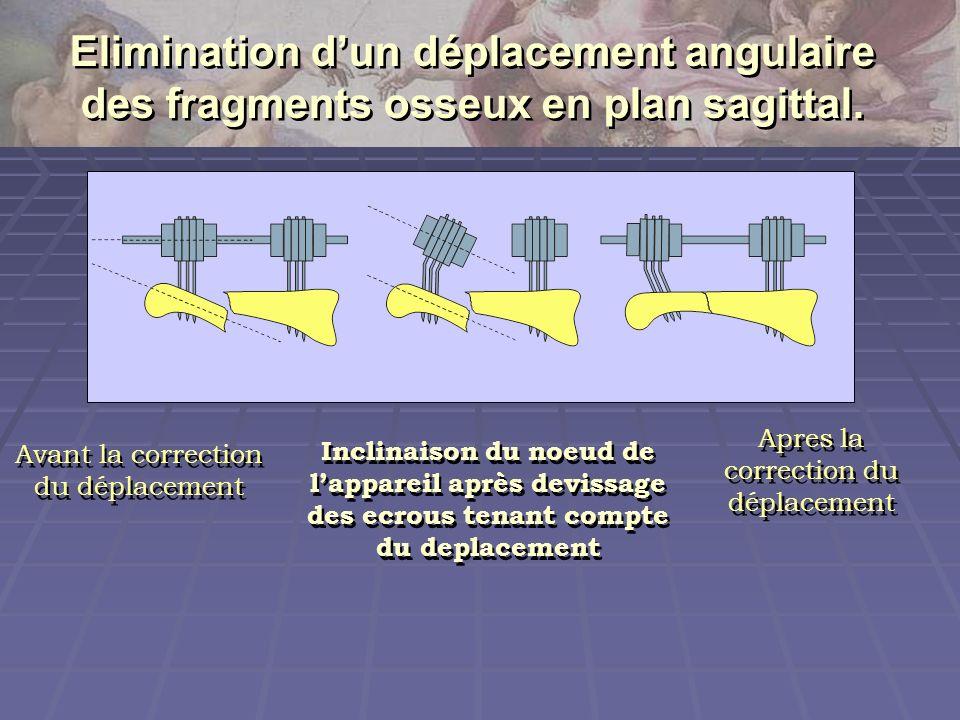 Elimination d'un déplacement angulaire des fragments osseux en plan sagittal.