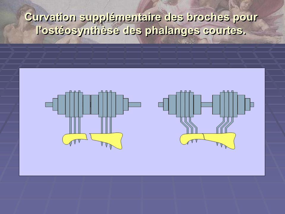 Curvation supplémentaire des broches pour l'ostéosynthèse des phalanges courtes.