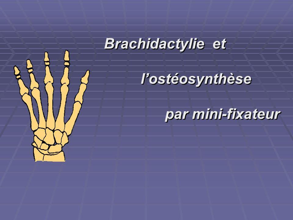 Brachidactylie et l'ostéosynthèse par mini-fixateur