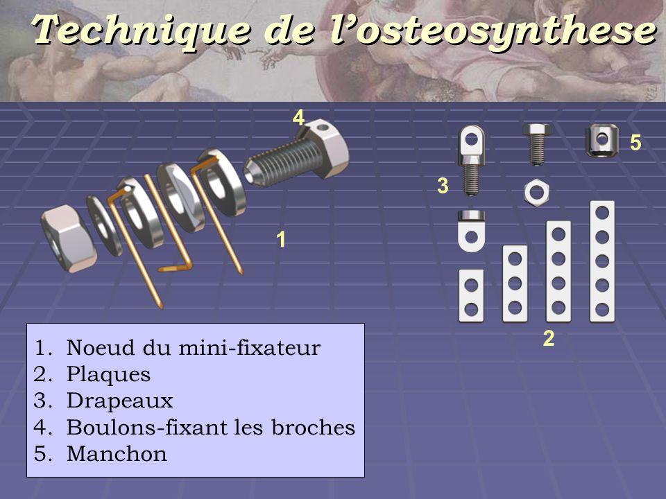 Technique de l'osteosynthese