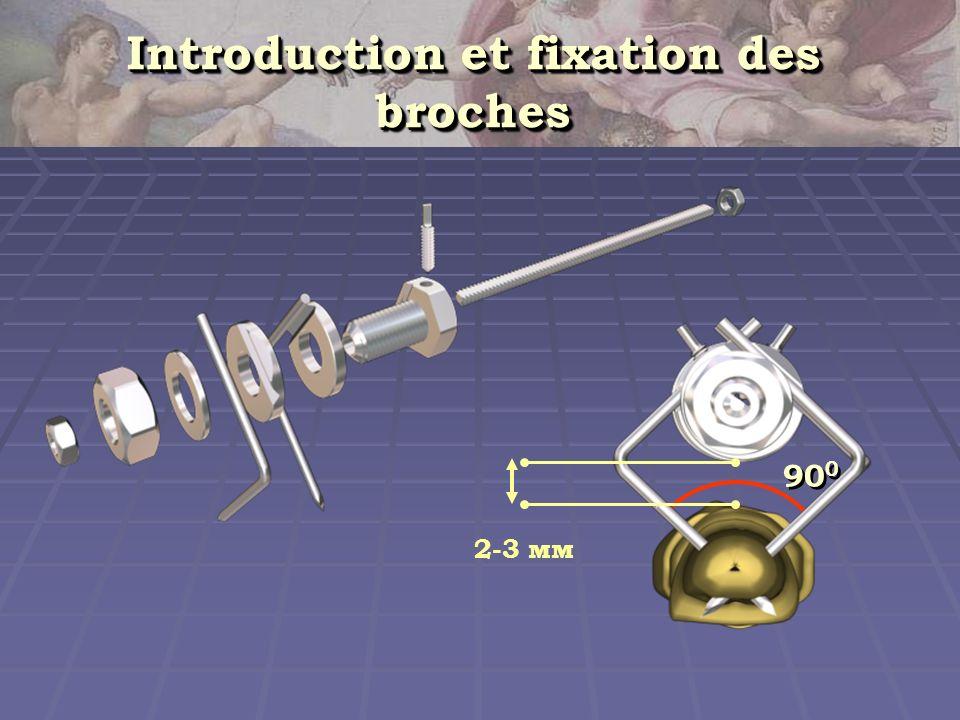 Introduction et fixation des broches