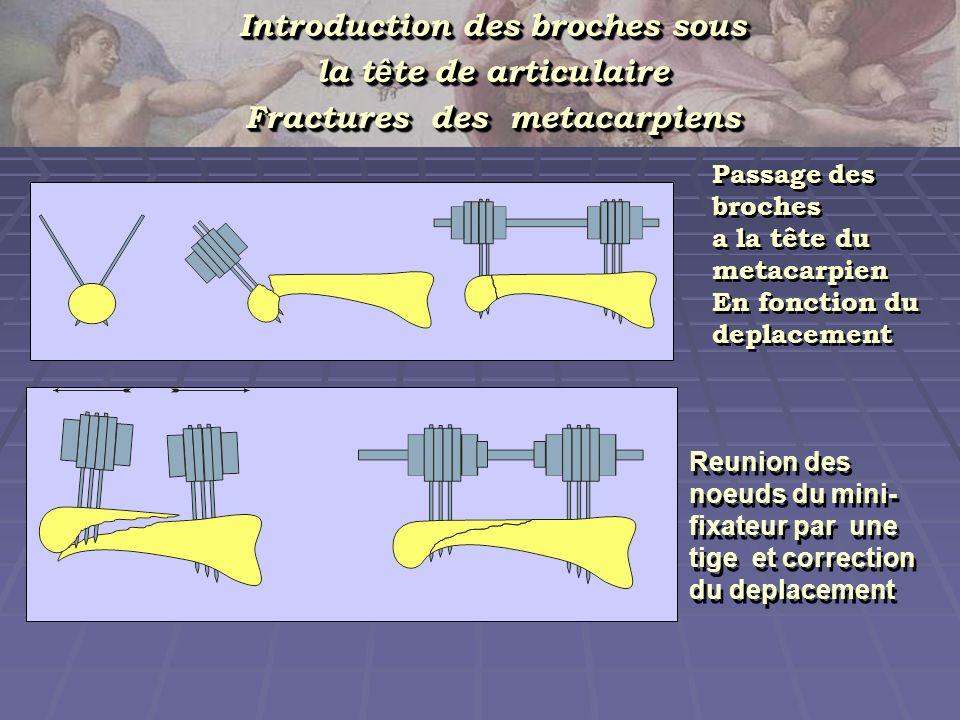 Introduction des broches sous Fractures des metacarpiens