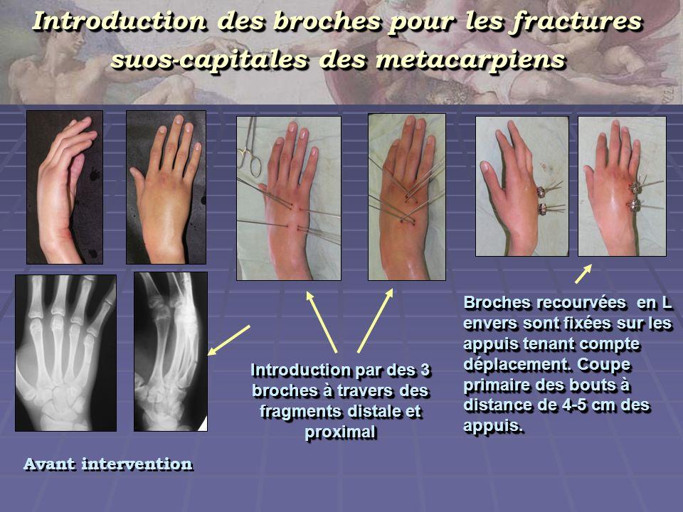 Introduction des broches pour les fractures