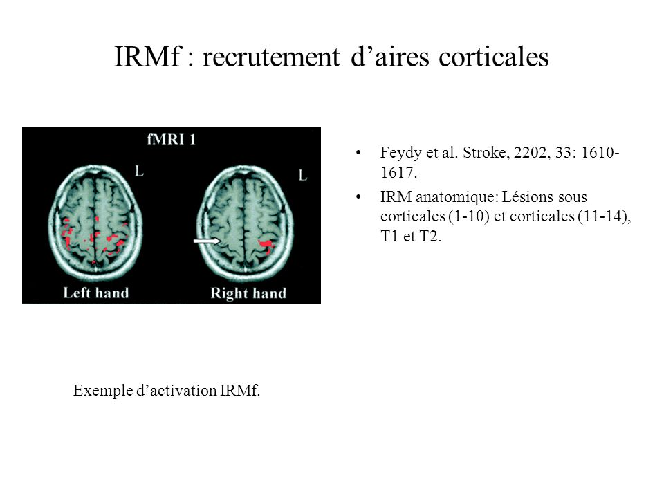 IRMf : recrutement d'aires corticales