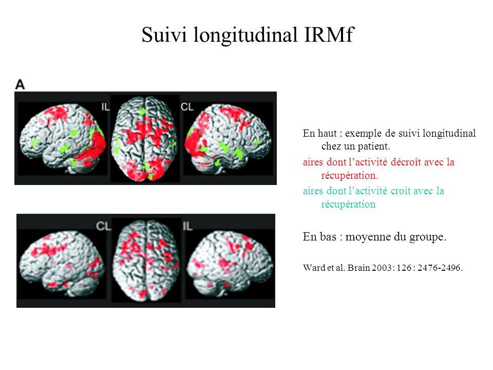 Suivi longitudinal IRMf