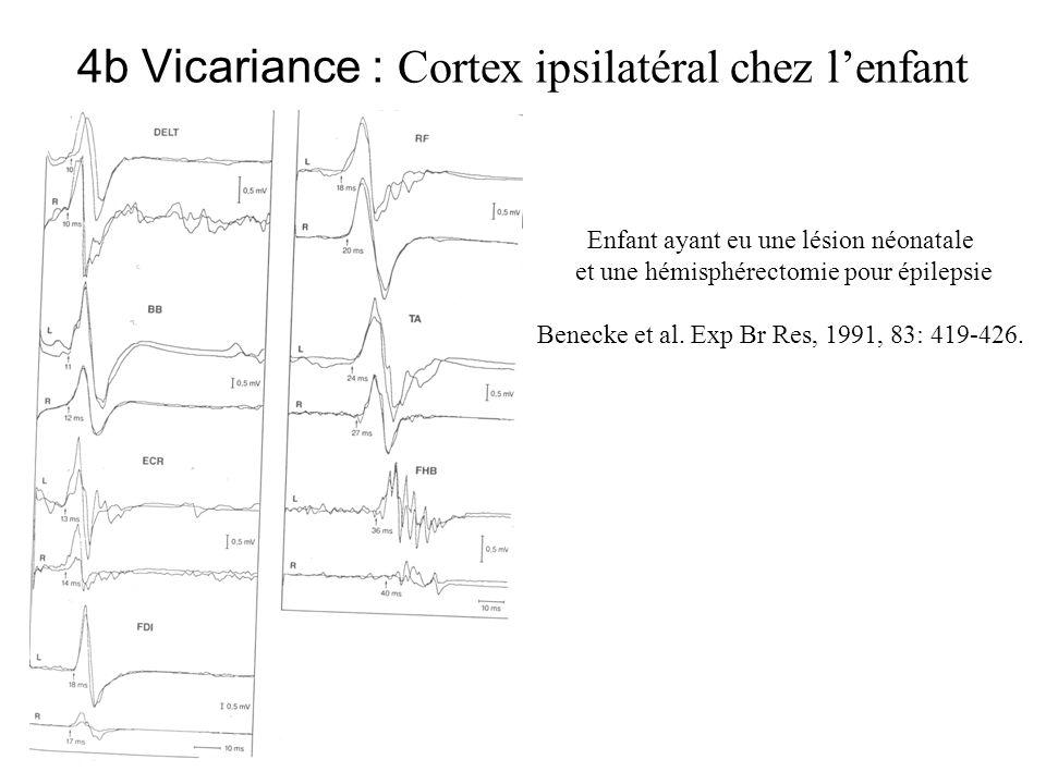 4b Vicariance : Cortex ipsilatéral chez l'enfant