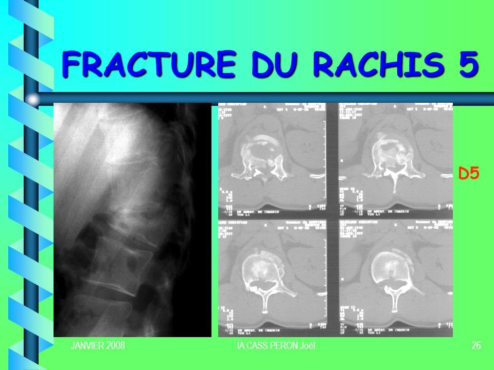 FRACTURE DU RACHIS 5 D5 JANVIER 2008 IA CASS PERON Joël