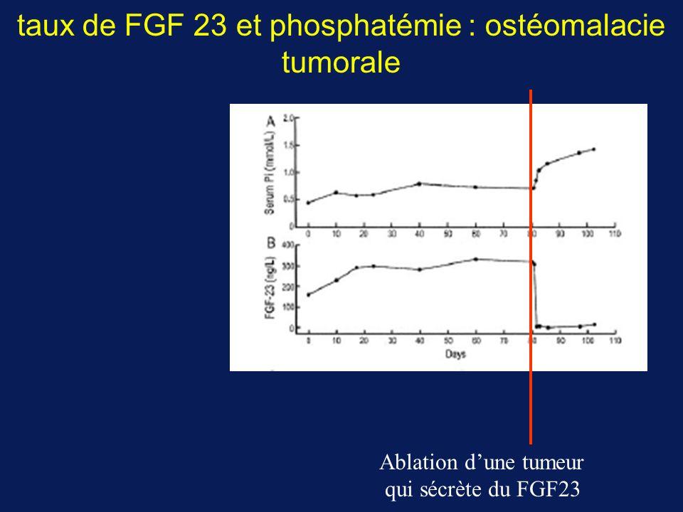 taux de FGF 23 et phosphatémie : ostéomalacie tumorale