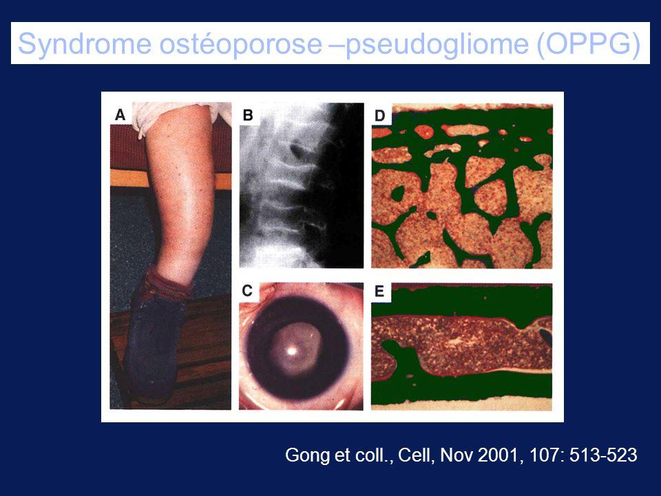 Syndrome ostéoporose –pseudogliome (OPPG)