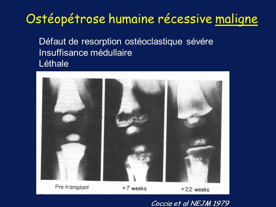 Ostéopétrose humaine récessive maligne