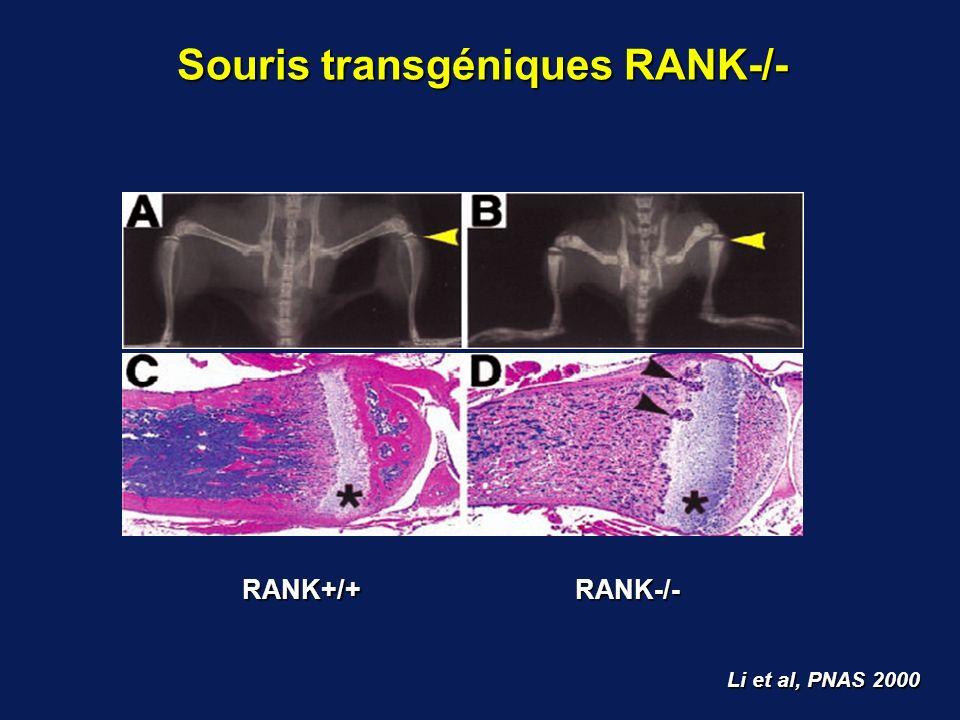 Souris transgéniques RANK-/-