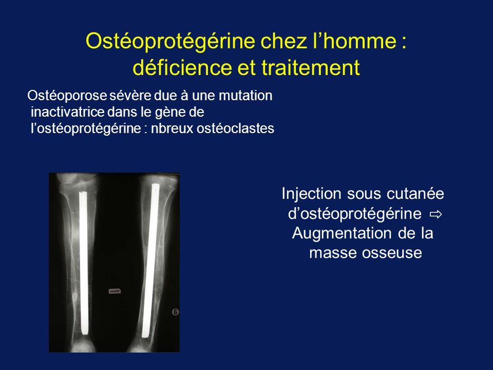 Ostéoprotégérine chez l'homme : déficience et traitement