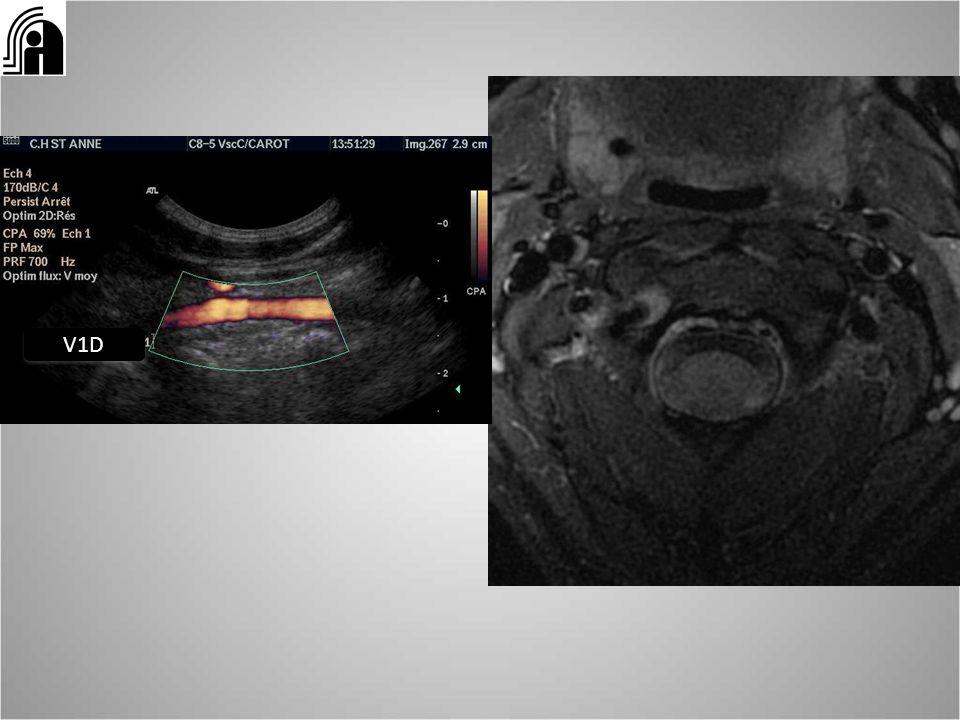 V1D Diss vertébrale en V1 hématome en écho et en IRM coupe axiale