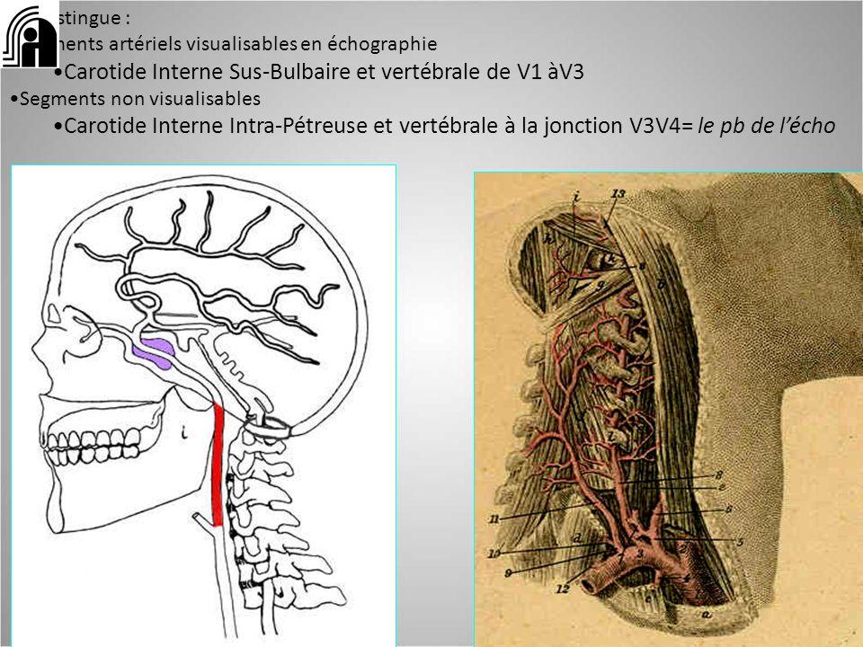 Carotide Interne Sus-Bulbaire et vertébrale de V1 àV3