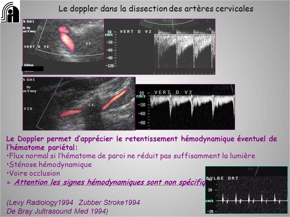 Le doppler dans la dissection des artères cervicales