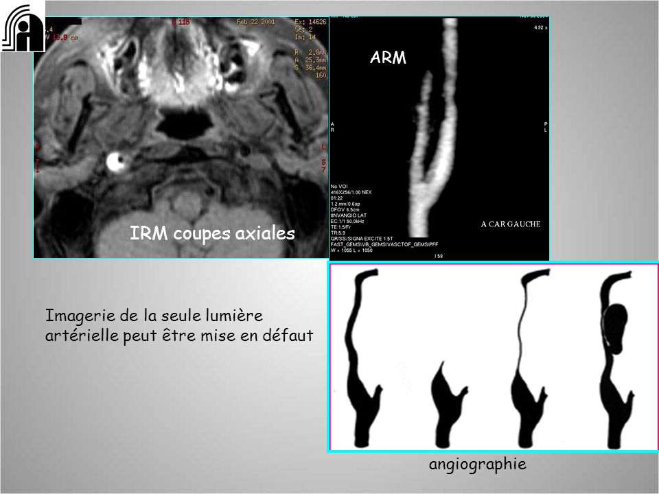 IRM coupes axiales: ARM