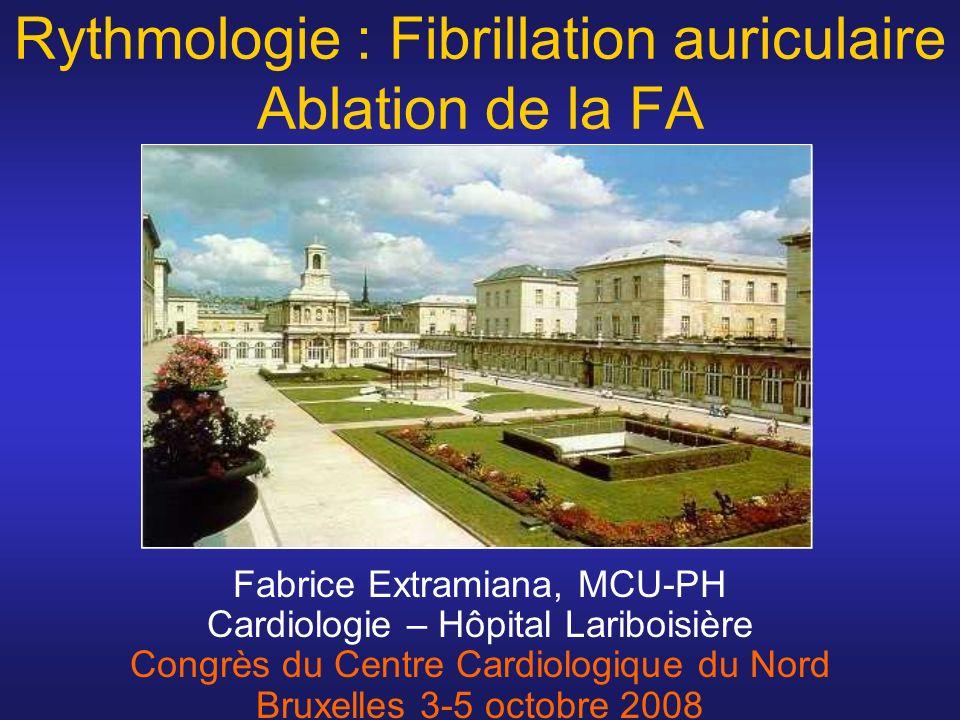 Rythmologie : Fibrillation auriculaire Ablation de la FA
