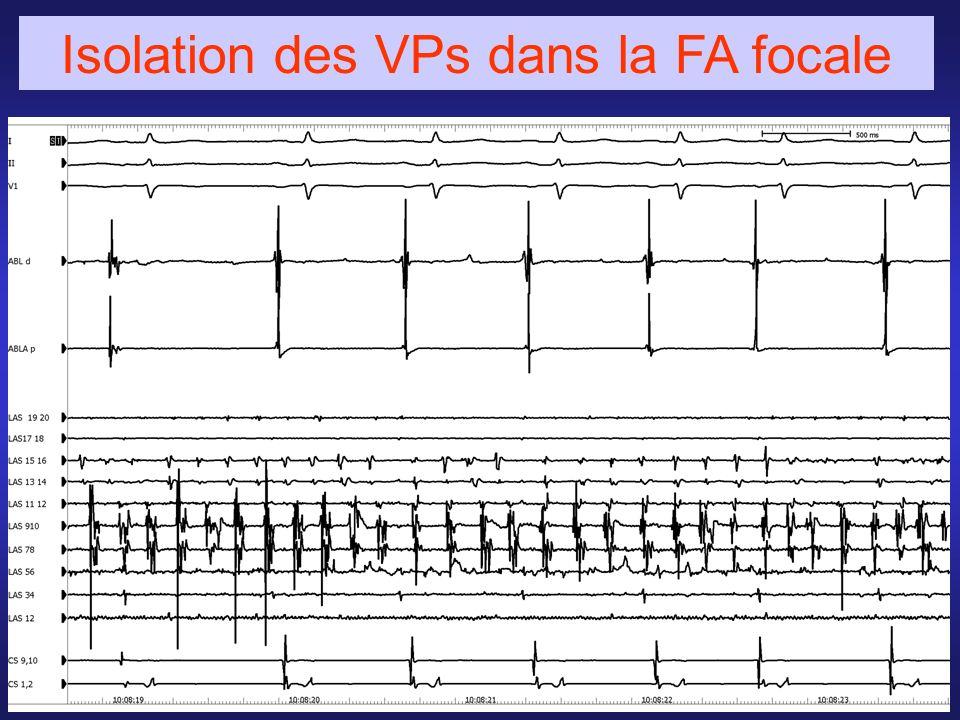 Isolation des VPs dans la FA focale