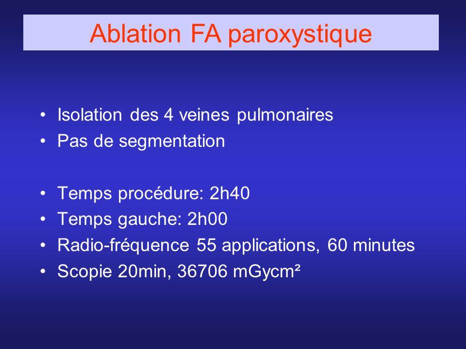 Ablation FA paroxystique