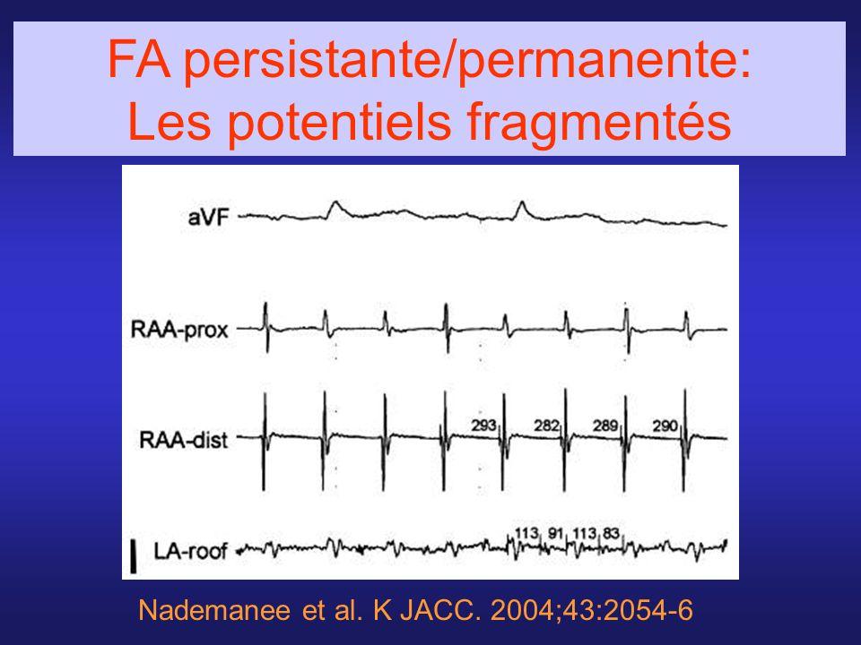 FA persistante/permanente: Les potentiels fragmentés