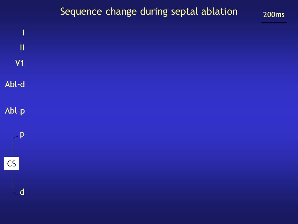 Sequence change during septal ablation