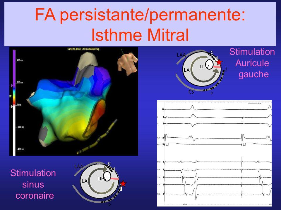 FA persistante/permanente: Isthme Mitral