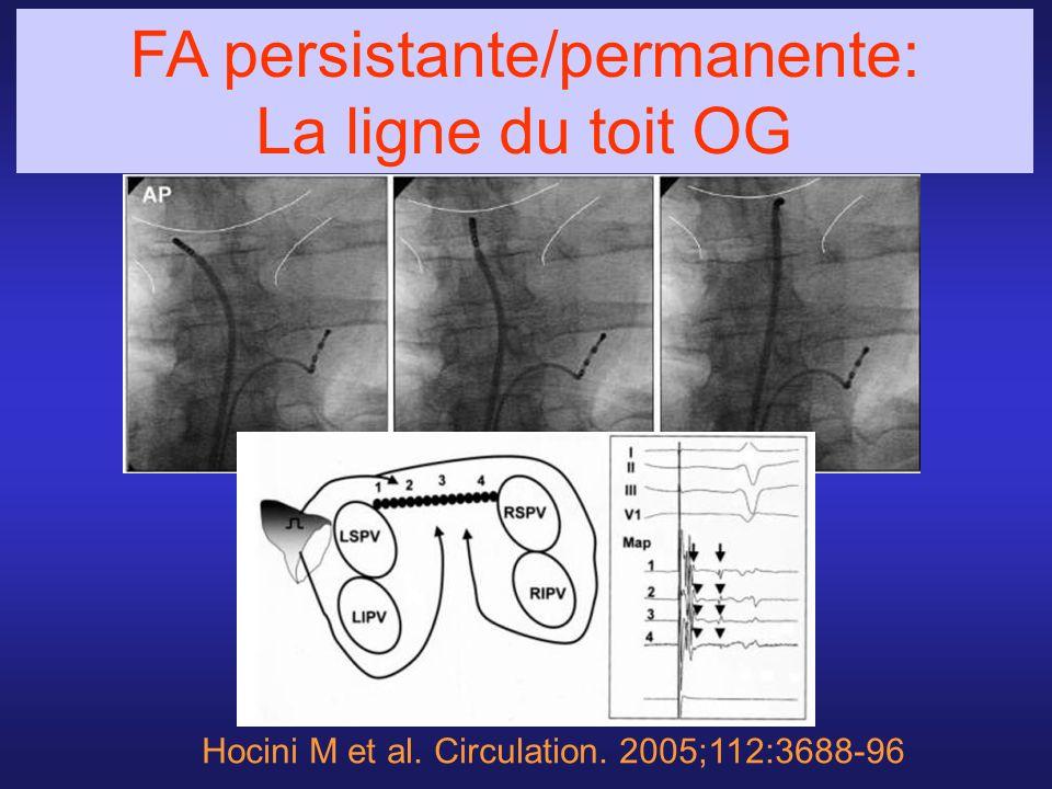 FA persistante/permanente: