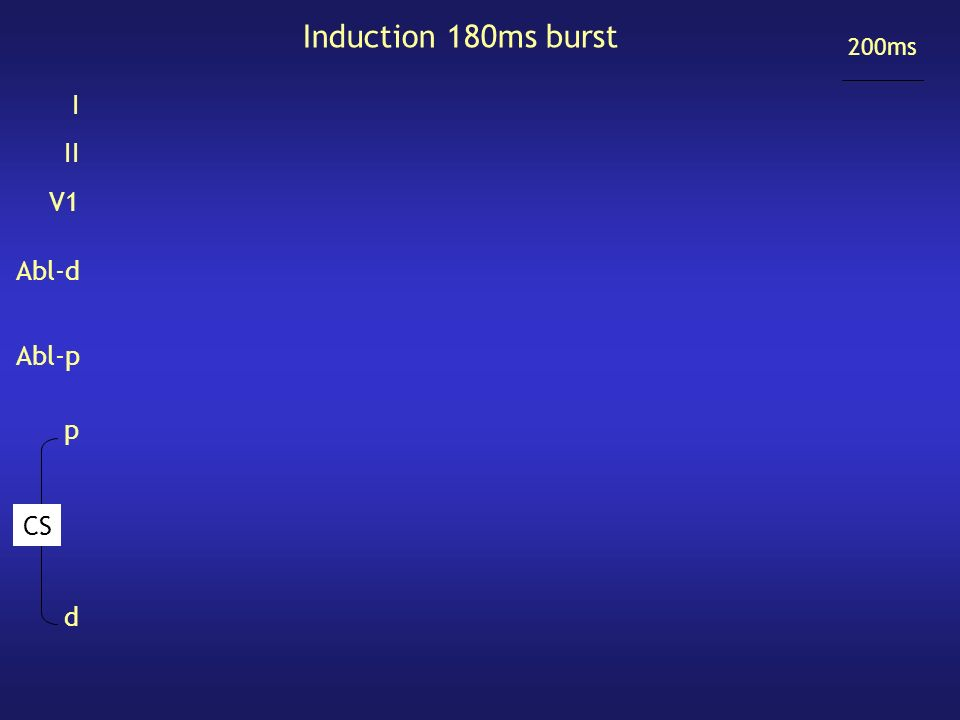Induction 180ms burst 200ms I II V1 Abl-d Abl-p d p CS