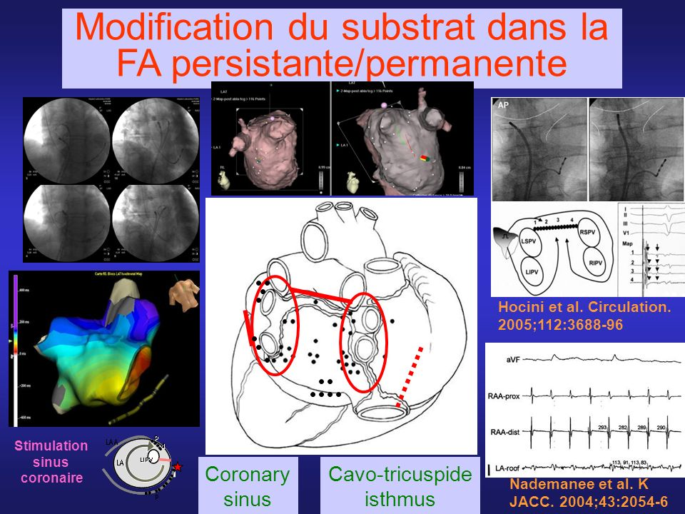 Modification du substrat dans la FA persistante/permanente
