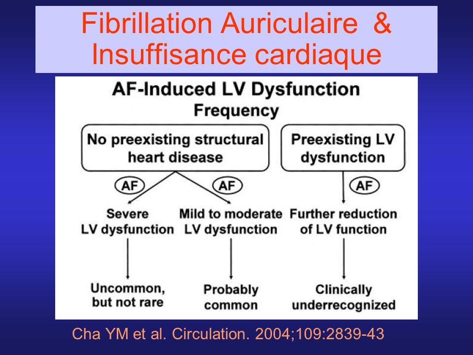 Fibrillation Auriculaire & Insuffisance cardiaque
