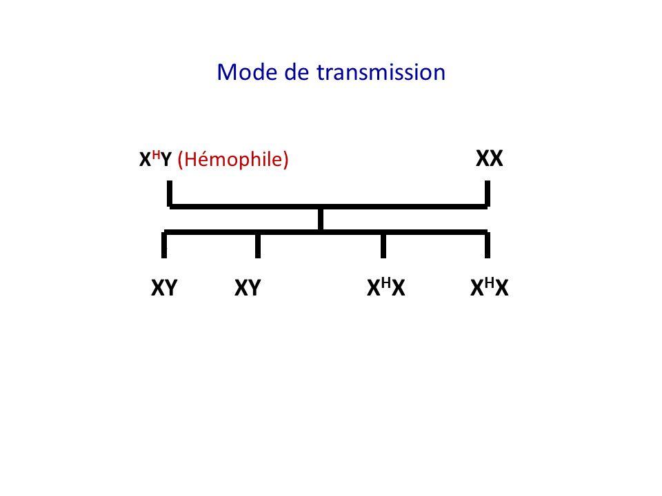 Mode de transmission XHY (Hémophile) XX XY XY XHX XHX