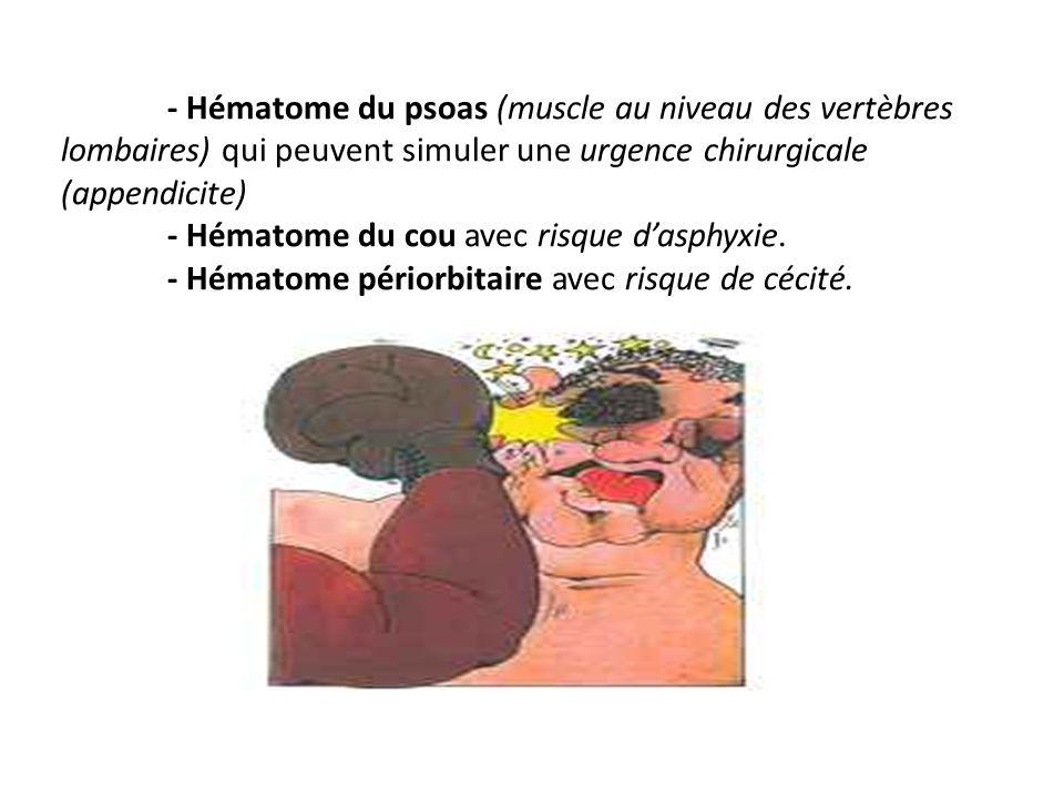 - Hématome du psoas (muscle au niveau des vertèbres lombaires) qui peuvent simuler une urgence chirurgicale (appendicite) - Hématome du cou avec risque d'asphyxie.