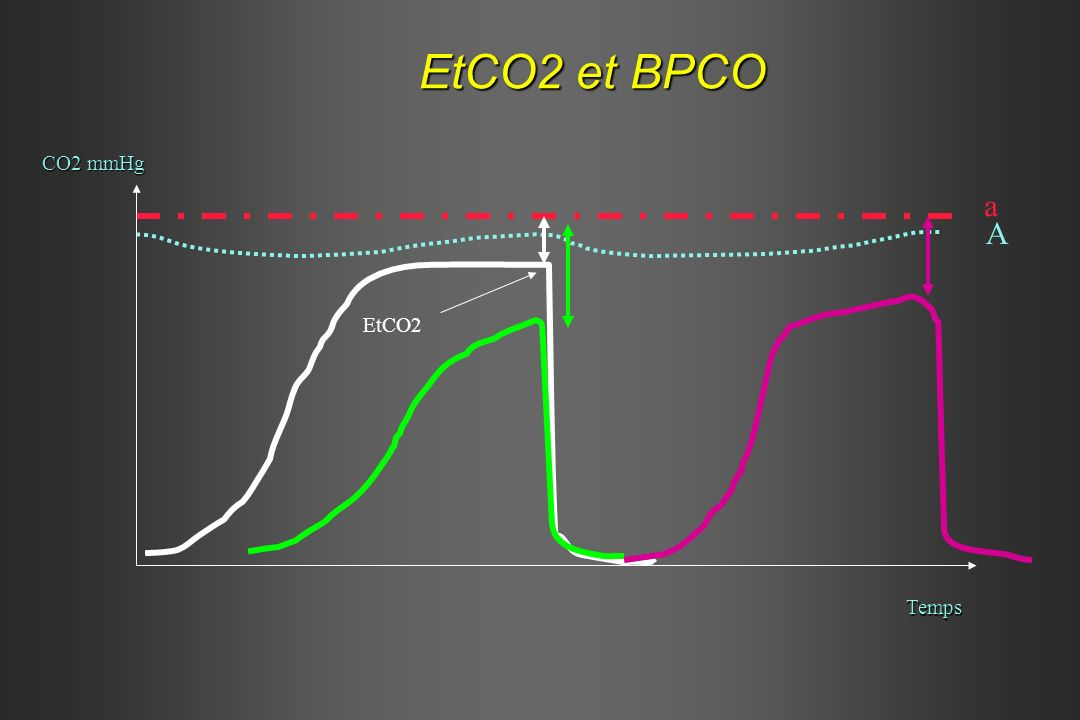 EtCO2 et BPCO CO2 mmHg Temps a A EtCO2