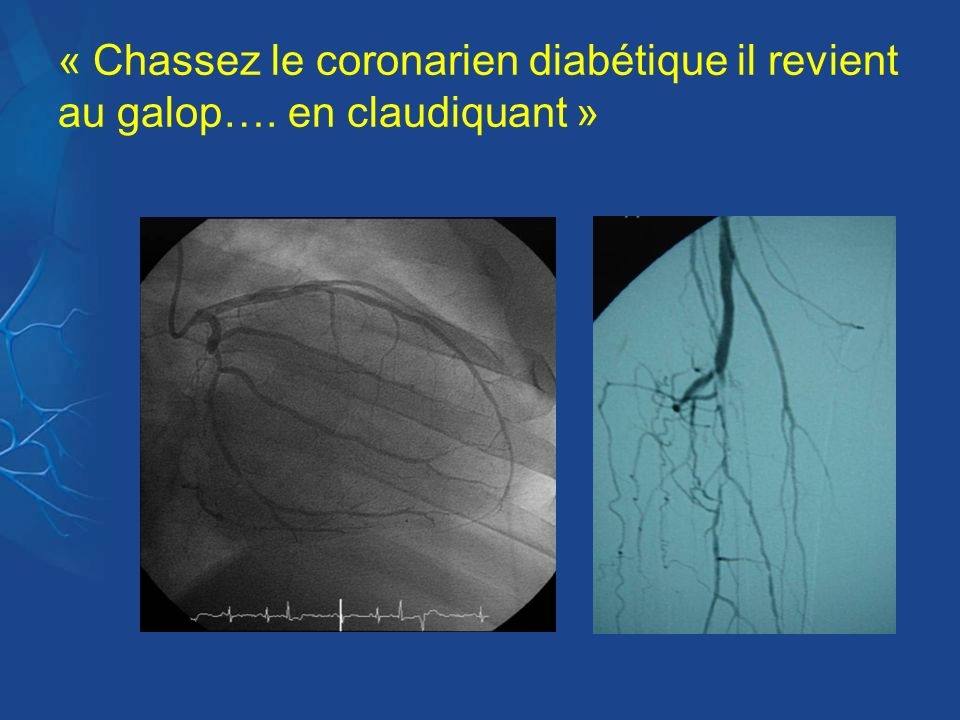 « Chassez le coronarien diabétique il revient au galop…