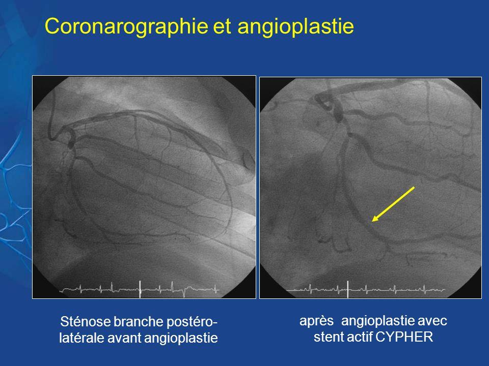 Coronarographie et angioplastie