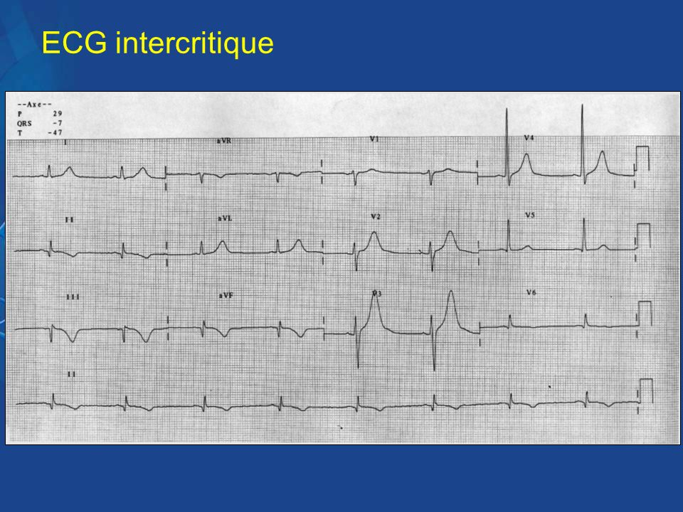 ECG intercritique