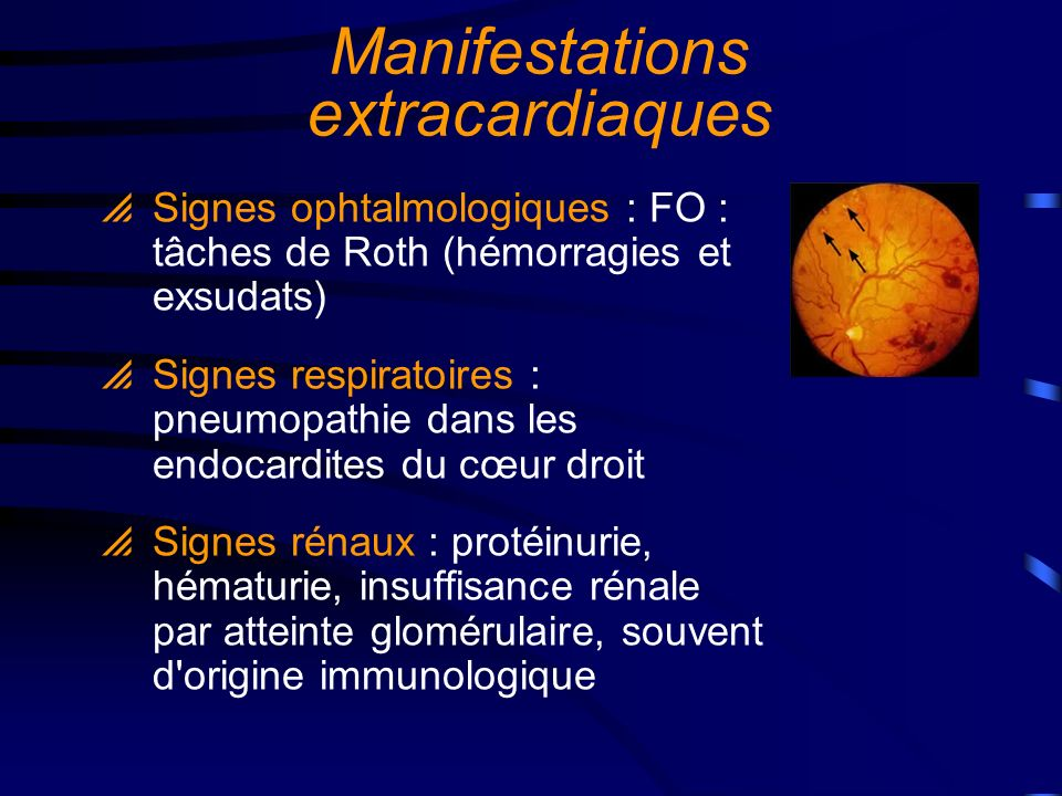 Manifestations extracardiaques