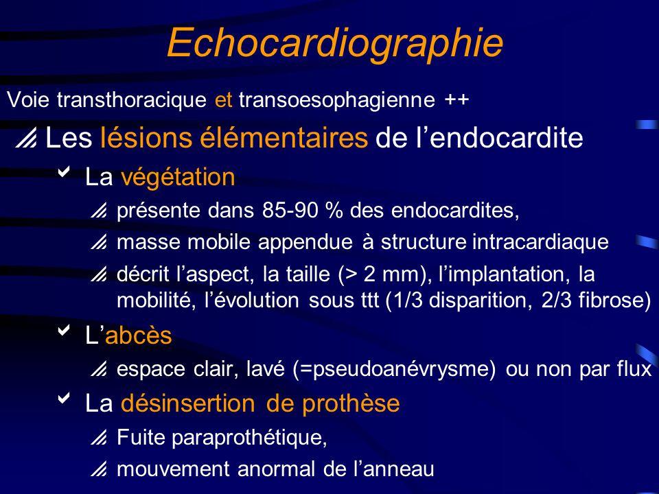 Echocardiographie Les lésions élémentaires de l'endocardite
