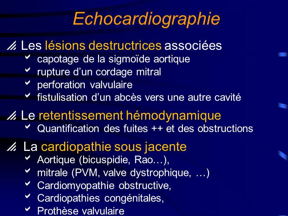 Echocardiographie Les lésions destructrices associées