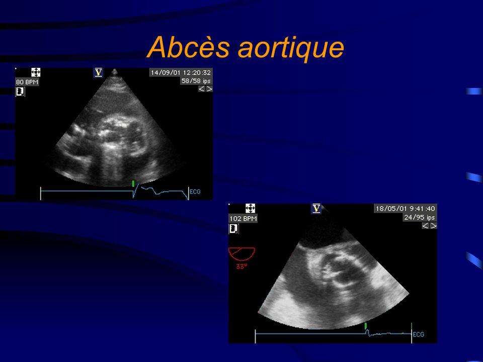Abcès aortique