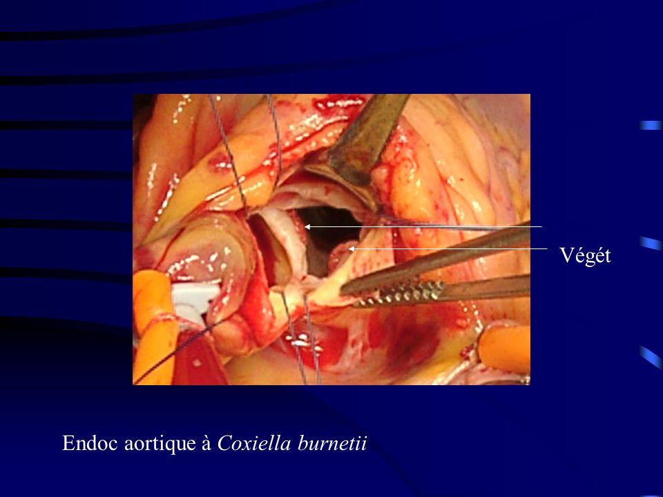 Végét Endoc aortique à Coxiella burnetii