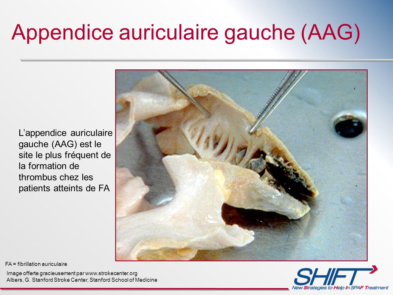 Appendice auriculaire gauche (AAG)