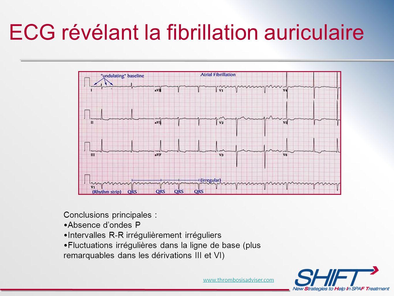 ECG révélant la fibrillation auriculaire