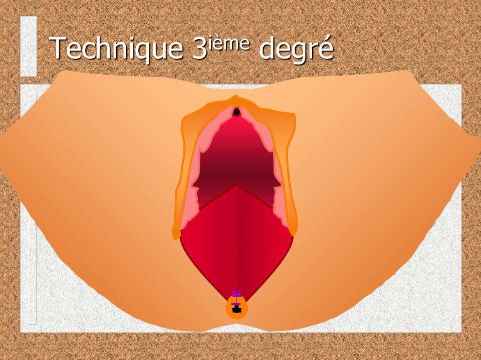 Technique 3ième degré
