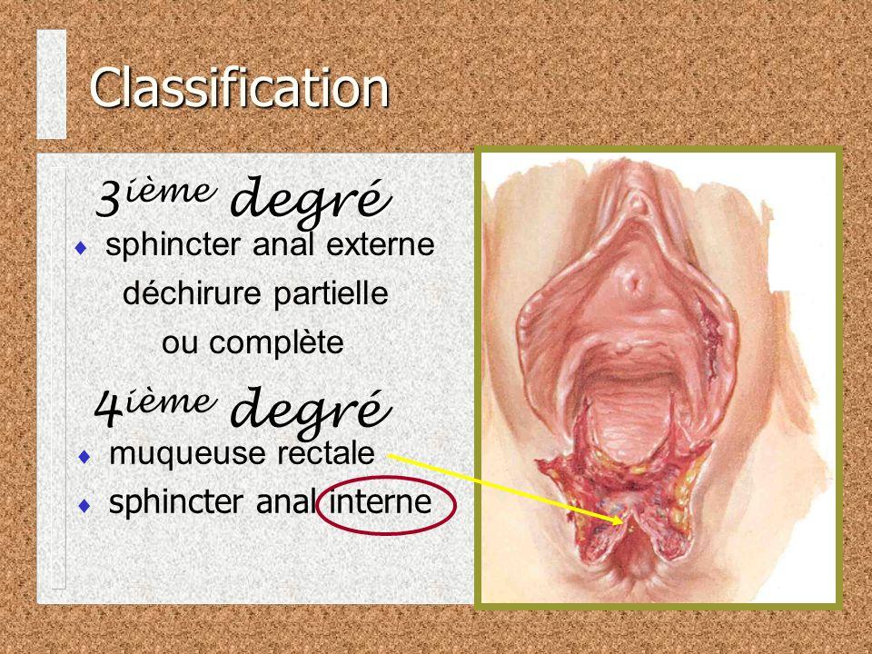 sphincter anal externe