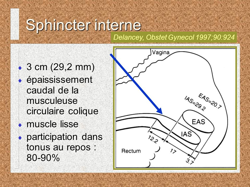 Delancey, Obstet Gynecol 1997;90:924