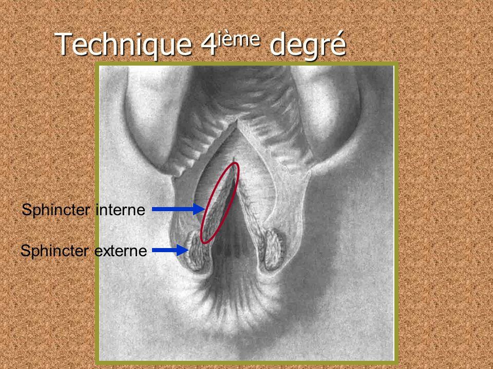 Technique 4ième degré Sphincter interne Sphincter externe
