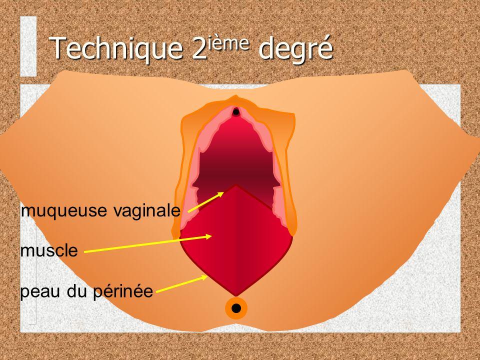 Technique 2ième degré muqueuse vaginale muscle peau du périnée